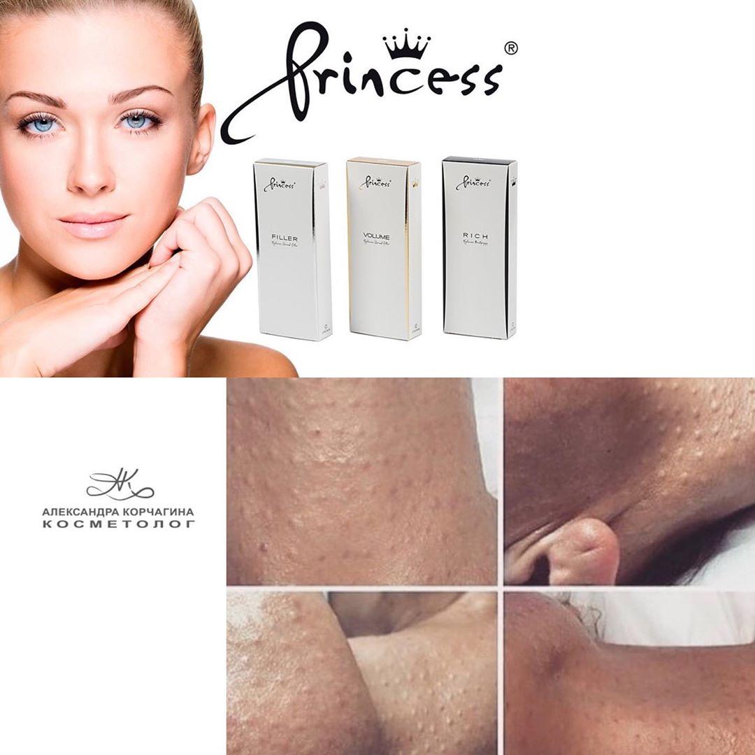 Если у вас сухость кожи мелкие шрамы и рубцы кожа стала не такая эластичная и уп...