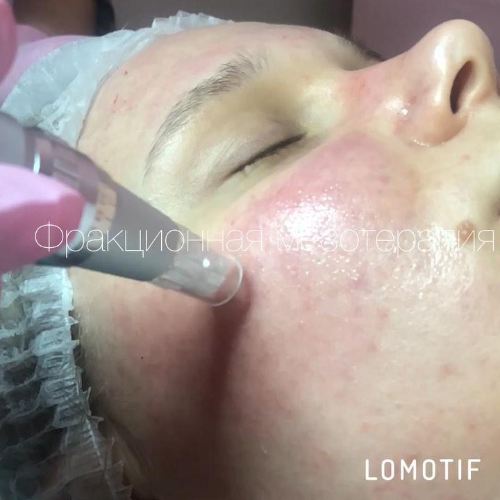 Фракционная микроигольчатая терапия  . Внедрение в кожу мезококтейлей микроиголь...