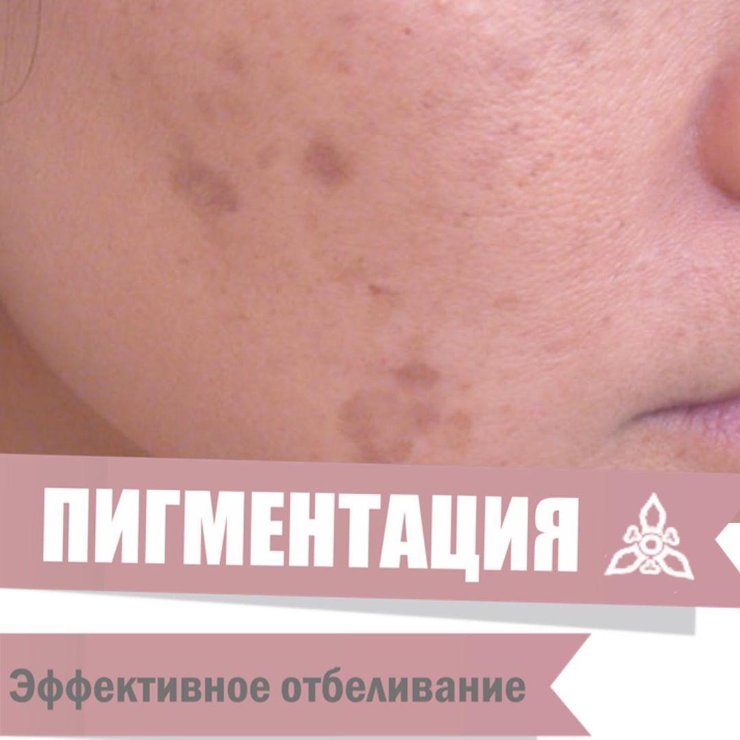 После летних отпусков очень актуальной становится пигментация на лице. Есть проц...