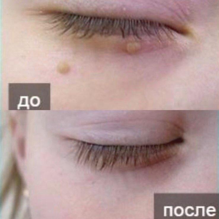 как вам результат до и после ? ⠀ записаться Бендлину Дмитрию Николаевичу ⠀ Все у...