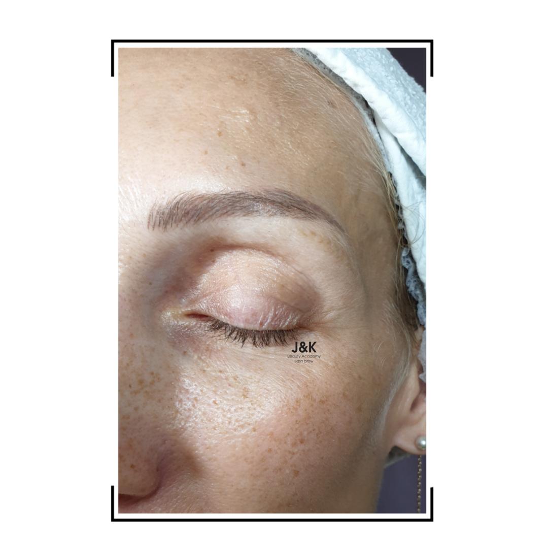 История одной пациентки ⠀ ⠀⠀Старение кожи, это не всегда обвисшие щёки и второй ...