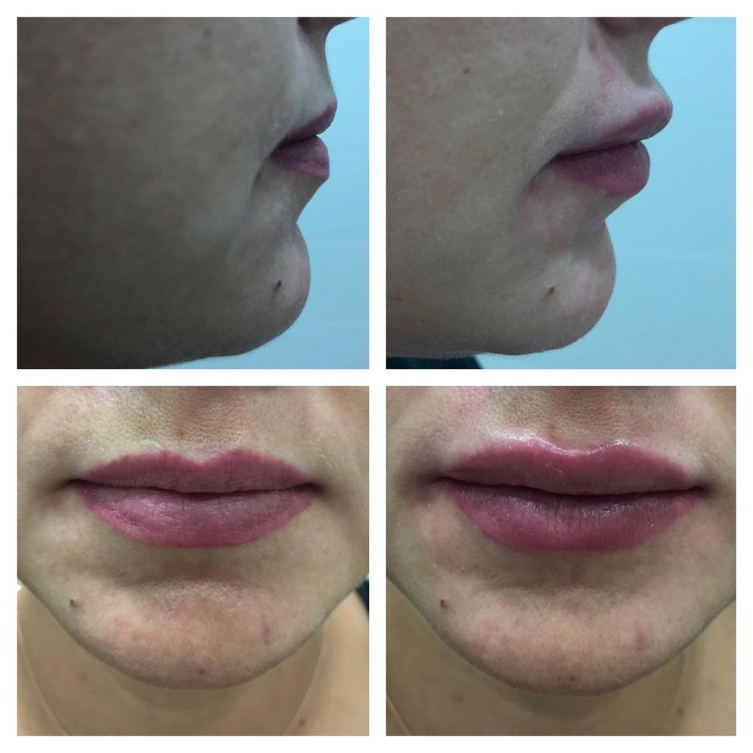 Чувственные выразительные губы, фото сразу после процедуры. .  Был использован п...