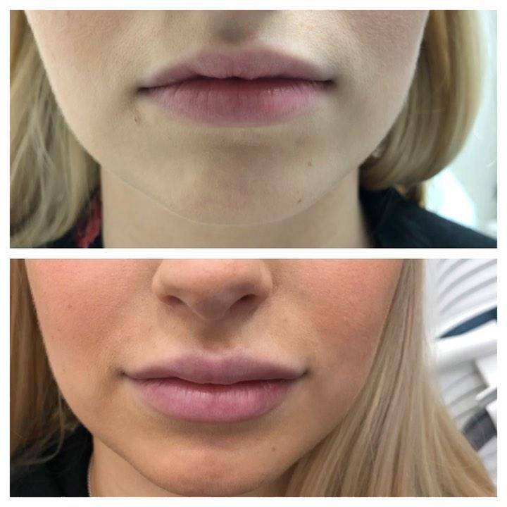 Один из самых популярных вопросов про количество препарата для коррекции губ. ....